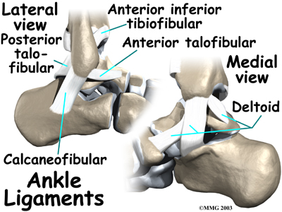 Strained Ankle Tendon & Ligaments